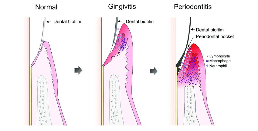 Gingivitis2