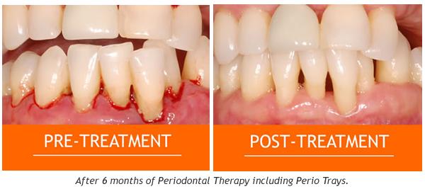 Gum Disease and Treatment2