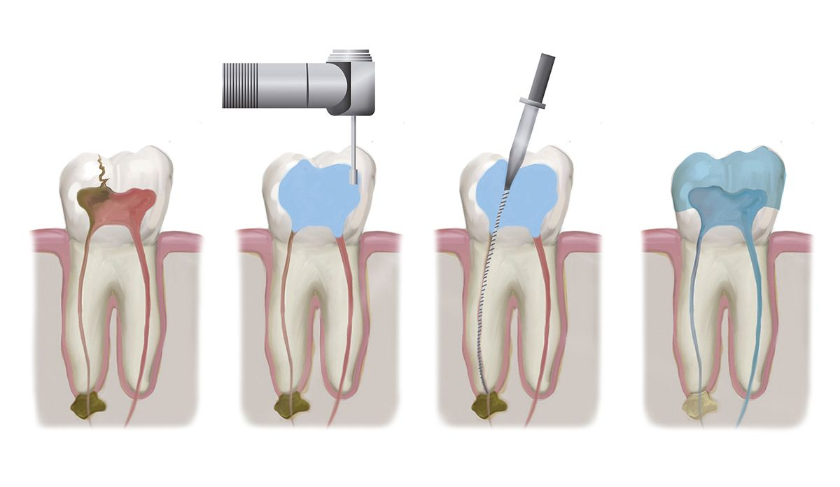 How Endodontic Therapy Works