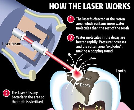How the laser works