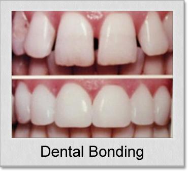 dental-bonding