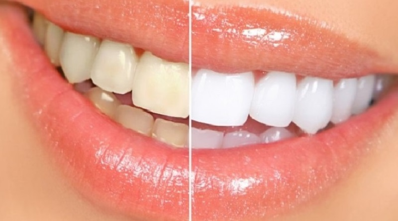 dentes-brancos-1580×782