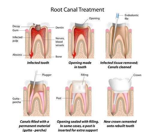 root-canal-treatment-500×500